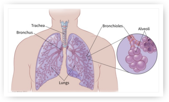 Small Cell Lung Cancer - West Cancer Center