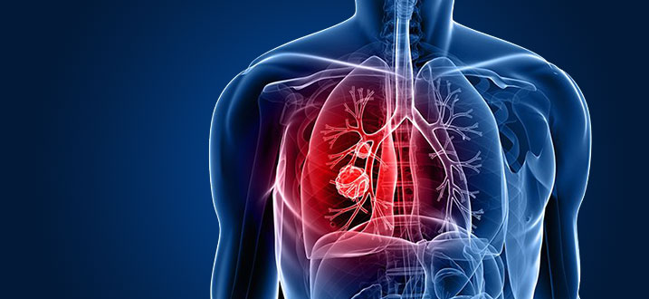 Non-Small Cell Lung Cancer - West Cancer Center